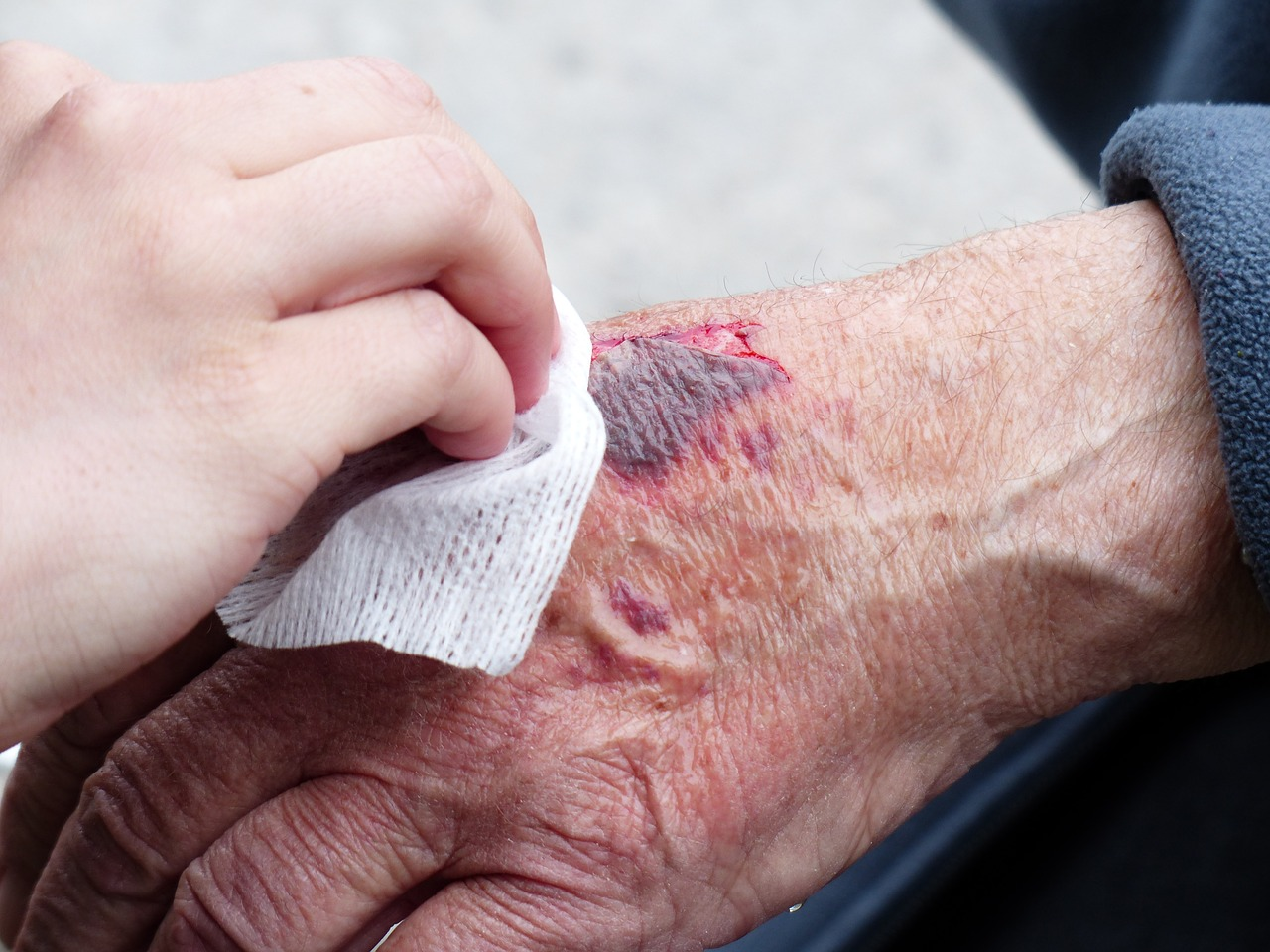 Regain Health Ltd - Wound care services showing how a patient is treated by a nurse